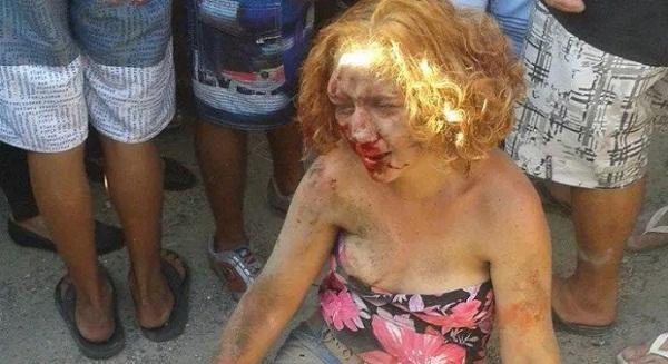 Fabiane Maria de Jesus após ser espancada pelos justiceiros.