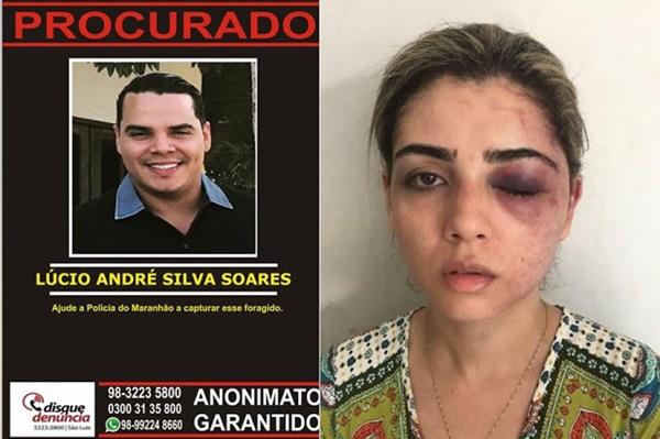 """Advogada Ludmila Ribeiro com medo de virar uma estatística do feminicídio no Brasil, diz """"As autoridades precisam me dar uma resposta""""."""